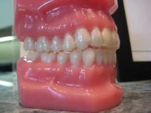 big teeth